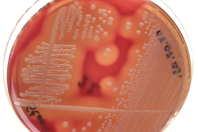 unknown lab report on staph aureus If you were not in lab when the inoculations with your unknown were performed, 3 points will be deducted from your lab report score for labs 12, 14, and 15 6 points from your lab report score for the final project.